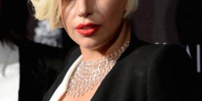 """¡Sin maquillaje! 15 famosas que se atrevieron a mostrar sus """"defectos"""" faciales"""