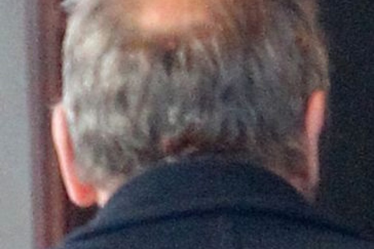 Sin embargo, la calvicie llegó a su cabeza Foto:The Grosby Group