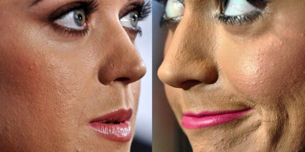 FOTOS. 16 celebridades que han sido criticadas por su acné