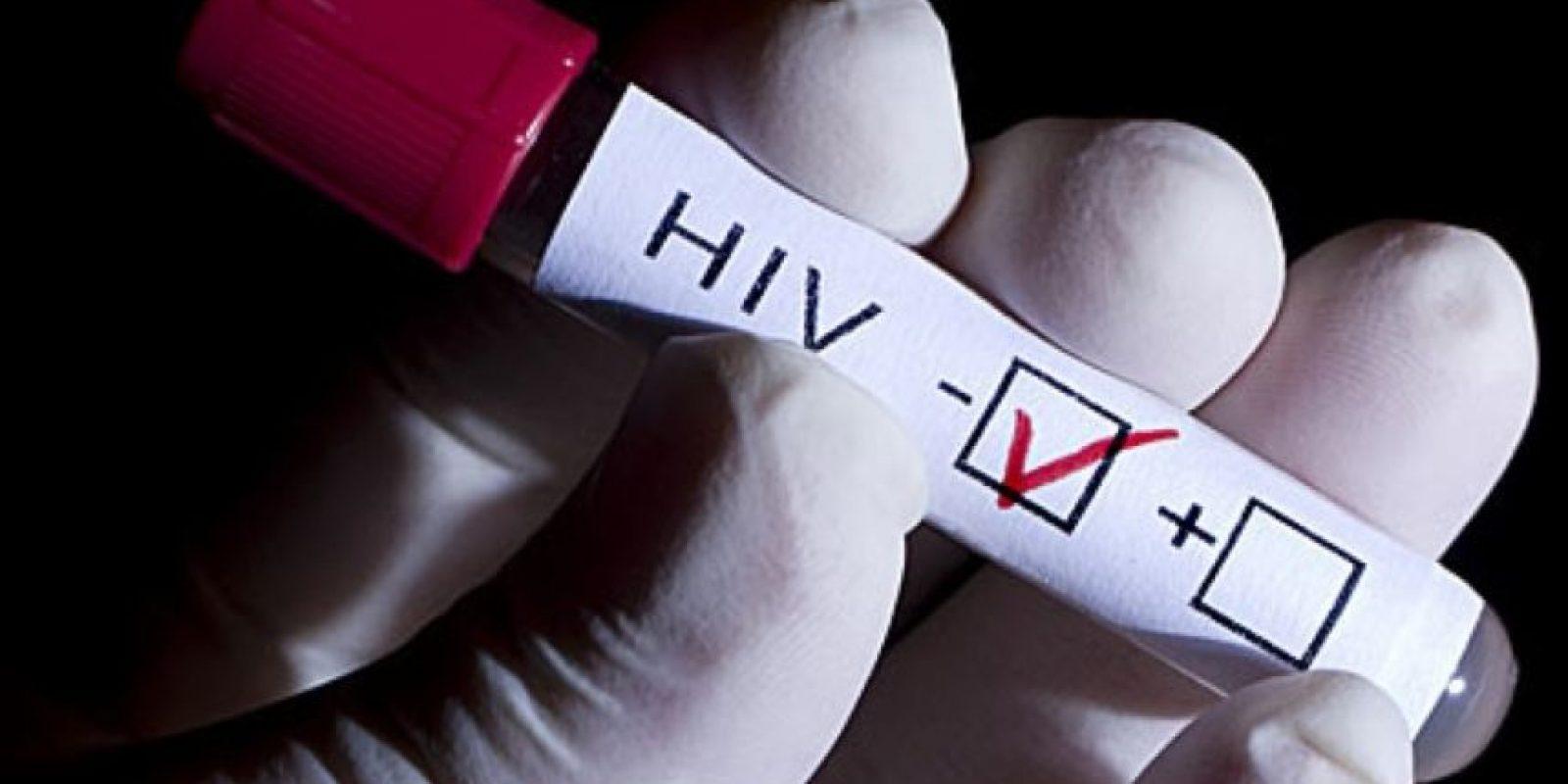 3. El VIH/SIDA es el agente infeccioso más mortífero del mundo. Hasta la fecha ha cobrado la vida de unos 30 millones de personas Foto:Tumblr.com/Tagged/VIH
