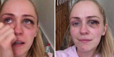 VIDEO: La golpeó su ex y justo después dio un increíble mensaje a las mujeres