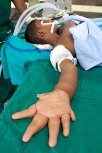De esta manera se espera que reduzcan sus manos a un tamaño normal. Foto:vía Barcroft Media