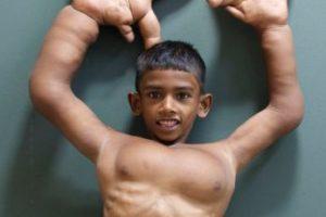 Mohammad Kaleem tiene gigantismo en sus manos. Foto:vía Barcroft Media