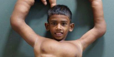 FOTOS: Este es el niño con las manos más grandes del mundo
