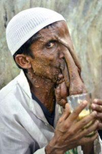 """Mannan Mondal es el famoso """"Hombre Elefante"""" de la India, que rechazó que le reconstruyeran la cara porque mendigando podía pagar la boda de su hija. Foto:vía Barcroft Media"""