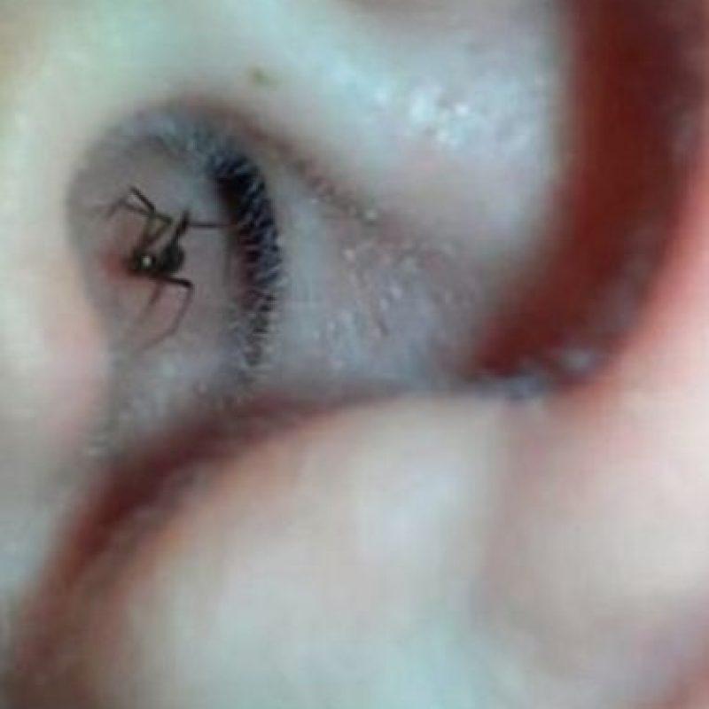 Luego de sentir un extraño cosquilleo en su oído, este hombre de Washington en Estados Unidos decidió filmar unos segundos -con ayuda de su dispositivo móvil- el canal de su oído. Y miren lo que encontró. Foto:Vía Youtube