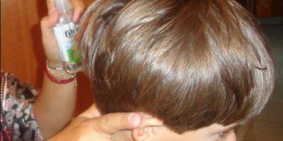 En 1994 los investigadores reportaron a los primeros piojos resistentes a los tratamientos. Foto:Vía flickr.com