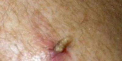 El moscardón humano también se desarrolla dentro de las personas, saliendo como un gusano. Foto:vía Youtube