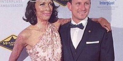 Pero a los 23 años fue víctima de un incendio que la dejó con el 65% de su cuerpo quemado Foto:Vía instagram.com/turiapitt/