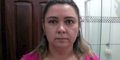 Laura Ponce es una maestra brasileña que tiene una curiosa afección en sus ojos. Foto:vía Barcroft Media