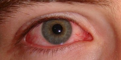 Por esta razón, es menester curarlo con lágrimas artificiales y otras indicaciones del oculista. Foto:vía Wikipedia