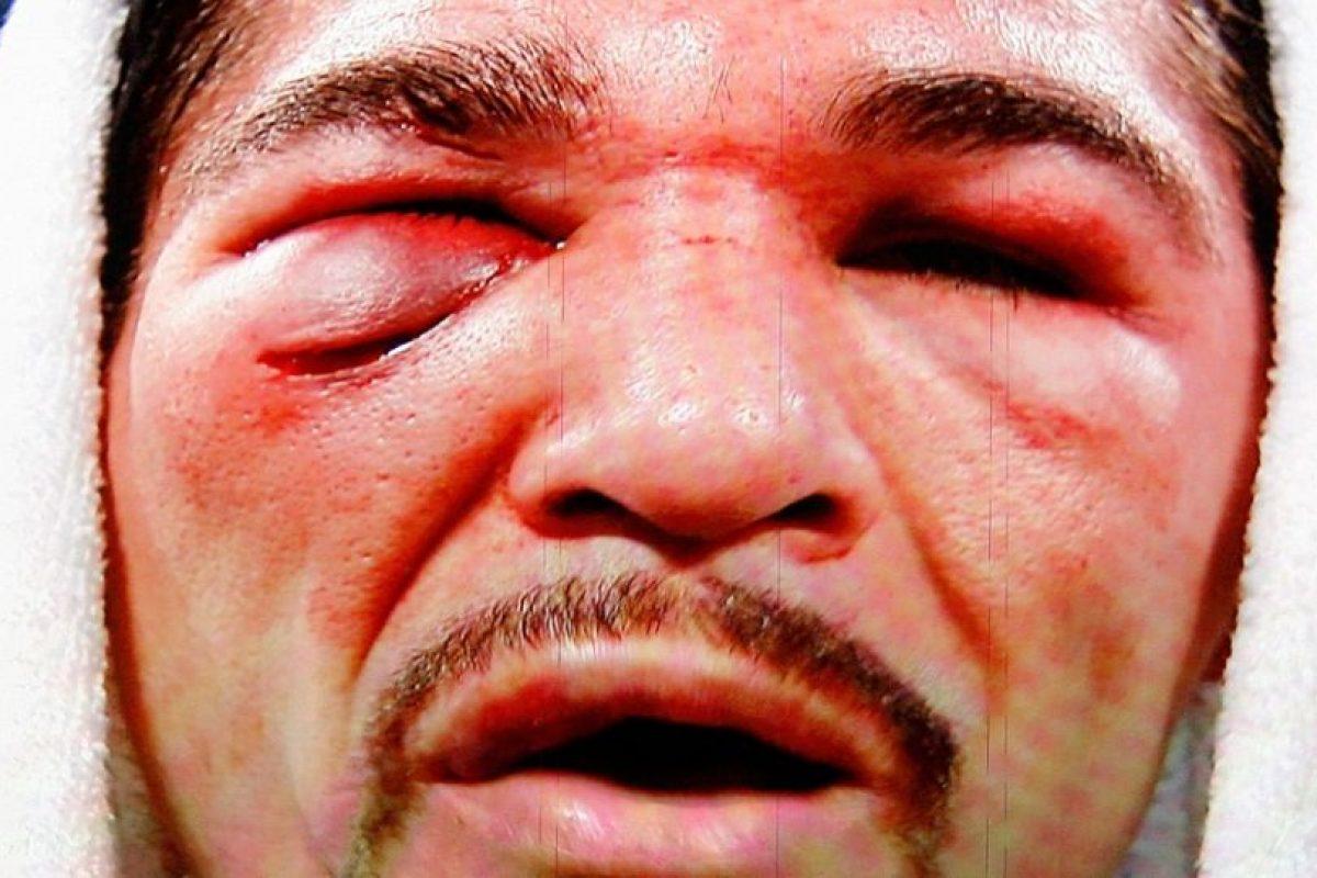 Foto:Para cerrar, dejamos esta grafica del rostro desfigurado, macerado e hinchado de Antonio Margarito, luego de perder de manera categórica en 12 vueltas ante Manny Pacquiao / Getty. Imagen Por: