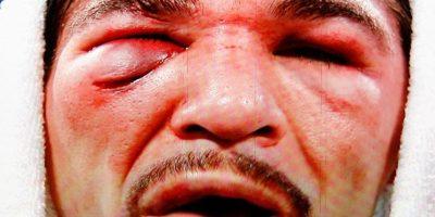 Foto:Para cerrar, dejamos esta grafica del rostro desfigurado, macerado e hinchado de Antonio Margarito, luego de perder de manera categórica en 12 vueltas ante Manny Pacquiao / Getty