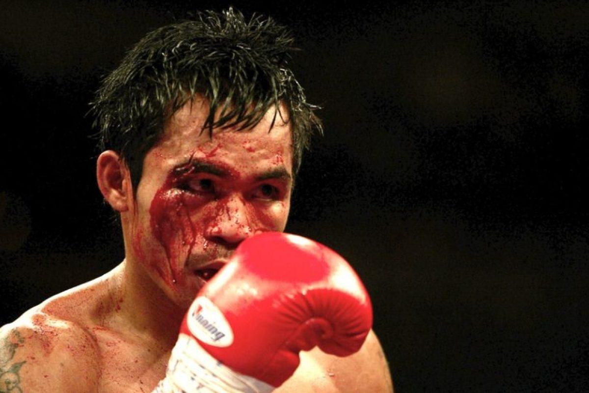 Foto:Para ser justos, pusimos esta foto en la que el filipino se manchó la cara en la pelea que perdió ante Érik Morales, durante la primera felpa de la trilogía. Tal vez el corte más serio que haya sufrido Manny en su carrera / Getty. Imagen Por: