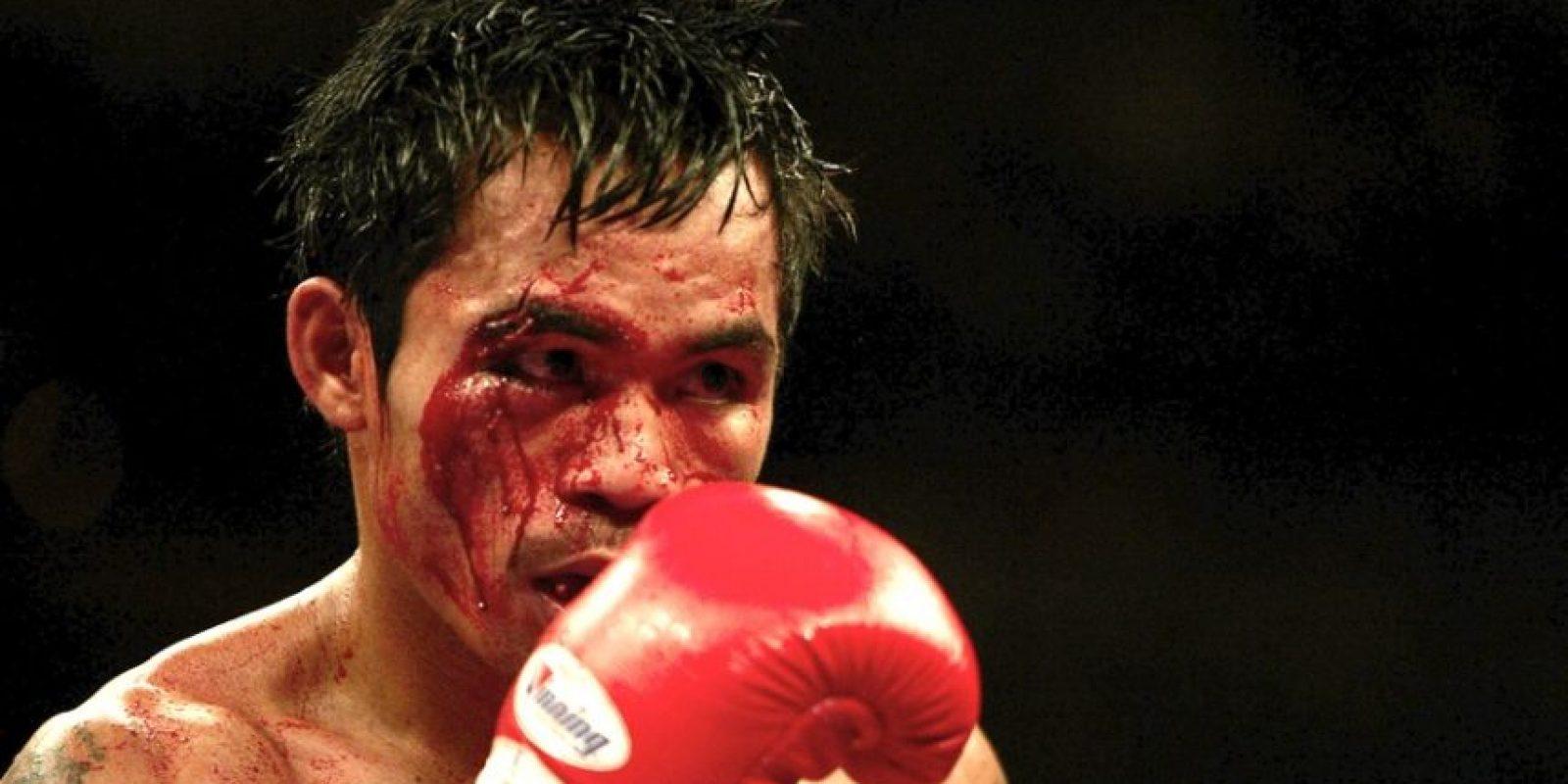 Foto:Para ser justos, pusimos esta foto en la que el filipino se manchó la cara en la pelea que perdió ante Érik Morales, durante la primera felpa de la trilogía. Tal vez el corte más serio que haya sufrido Manny en su carrera / Getty