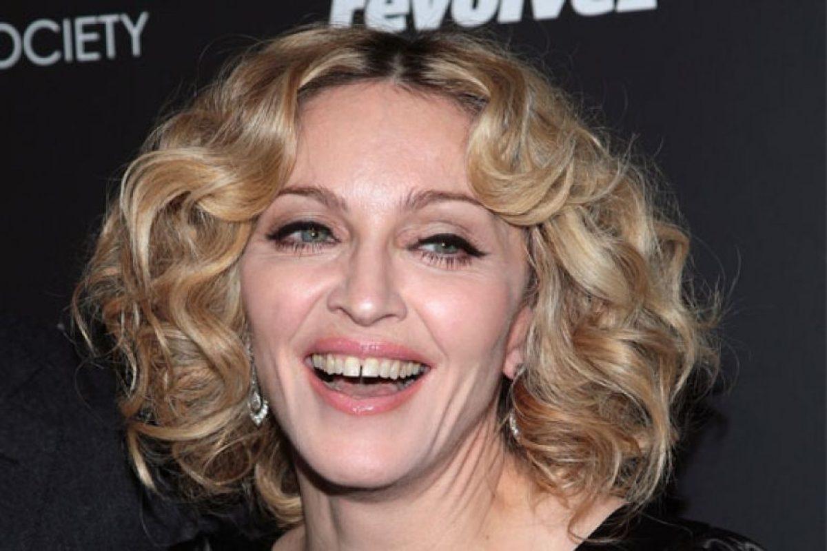 Madonna nunca arregló la gran separación de sus dientes. La cantante ha hecho que eso sea lo menos relevante de su carrera. Foto:Google