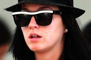 Katy Perry tiene una figura impecable, pero los problemas de piel en su rostro la vuelven como una más de las mortales. Foto:Google