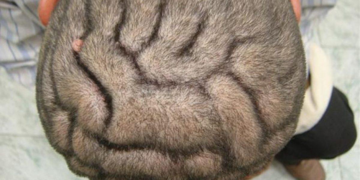 Extraña enfermedad deforma el cuero cabelludo
