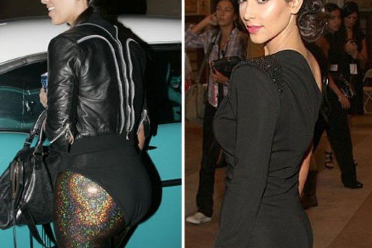Fotos Kim Kardashian Antes Y Despu 233 S De Las Cirug 237 As