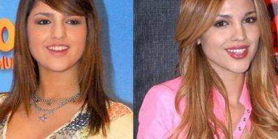 FOTOS: Antes y después de las cirugías: Eiza González