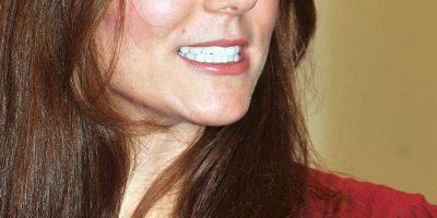 FOTOS: Ésta es la nariz más pedida en cirugías plásticas