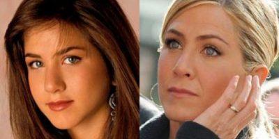 Antes y después de las famosas con cirugías