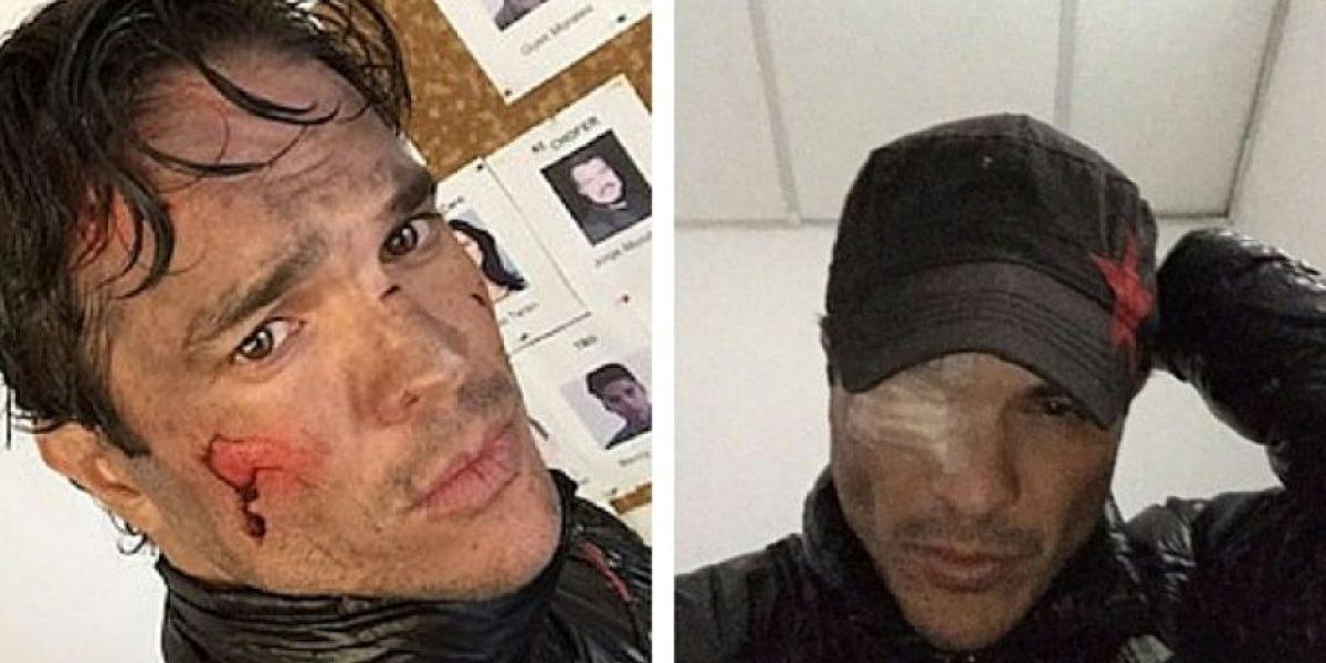 Kuno Becker pierde la visión de un ojo durante el rodaje de una película