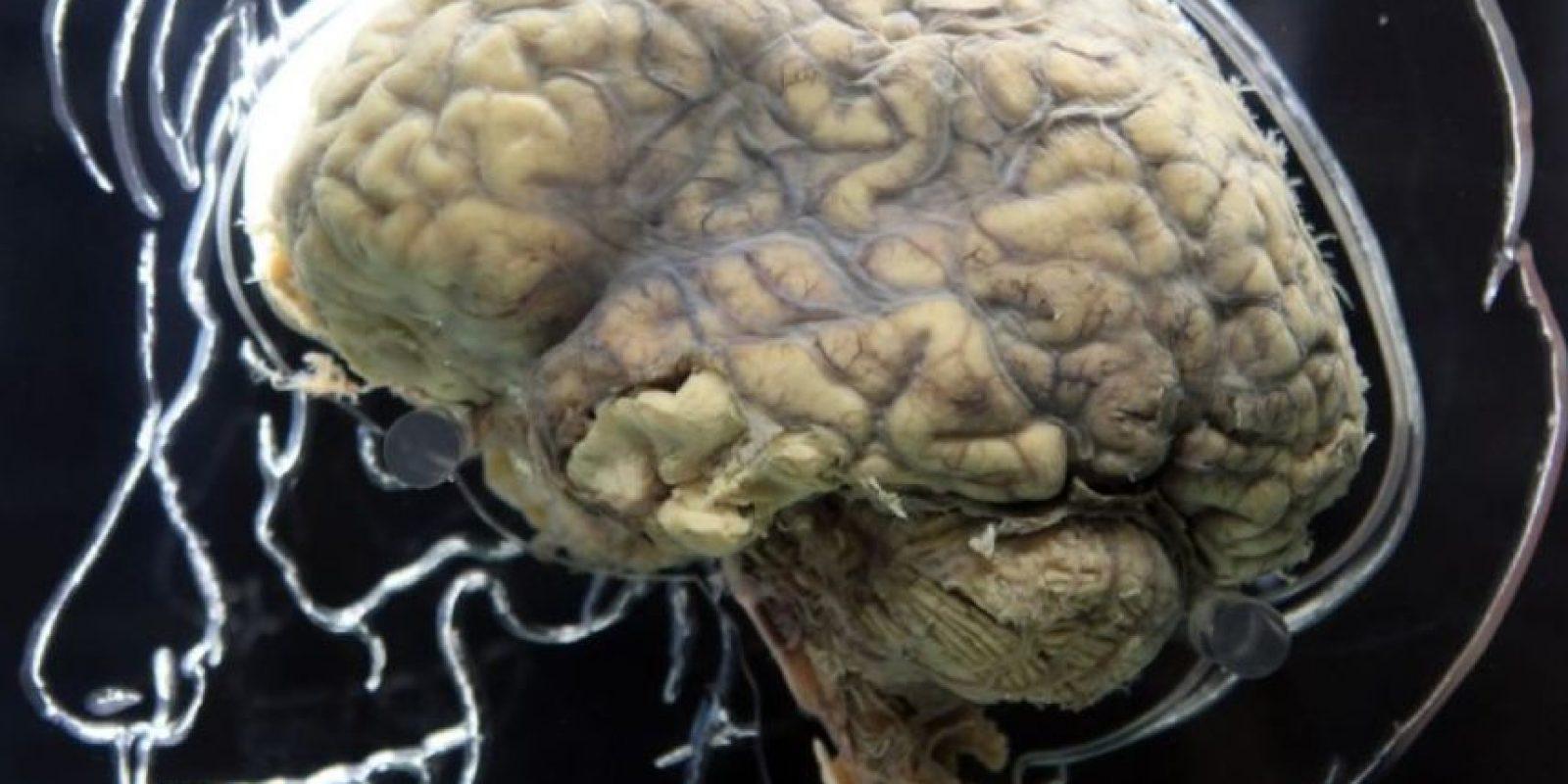 Cuando el problema de memoria llegue a afectar nuestras actividades diarias, es necesario acudir con un especialista. Foto:Getty Images