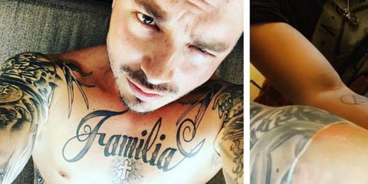 J Balvin en tratamiento láser para quitarse los tatuajes