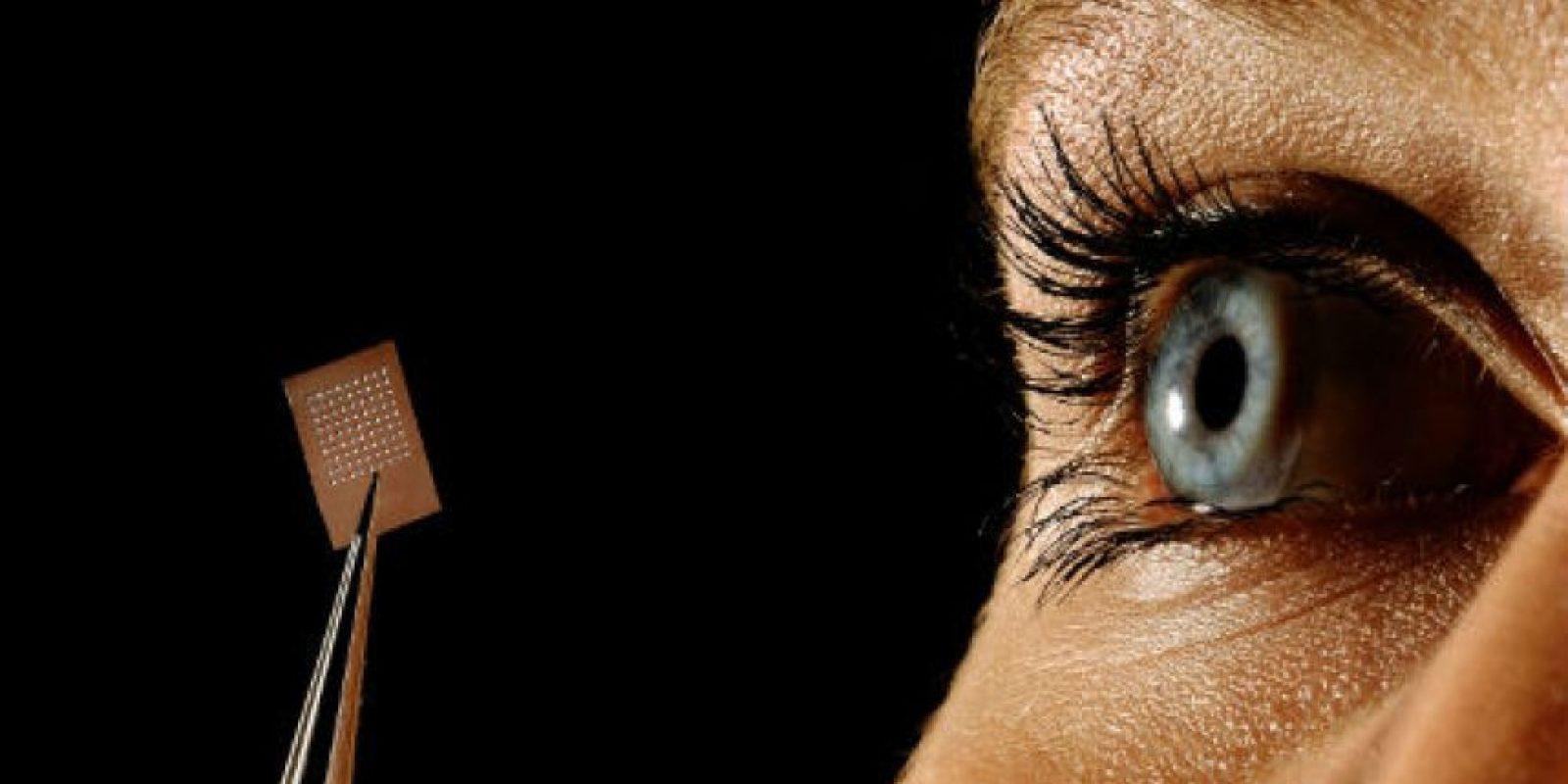 Los órganos que comúnmente son afectados incluyen los nervio ópticos, testículos, ovarios y pulmones, entre otros. Foto:Getty Images