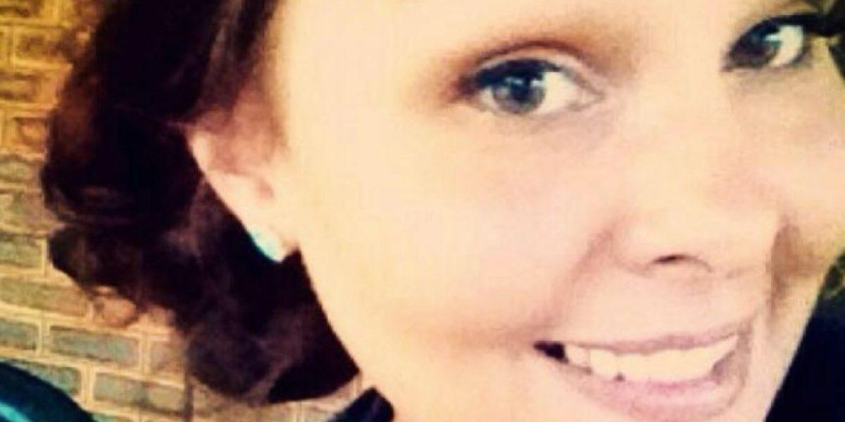 Mujer quedó deforme y quemada por aplicar crema en su cara