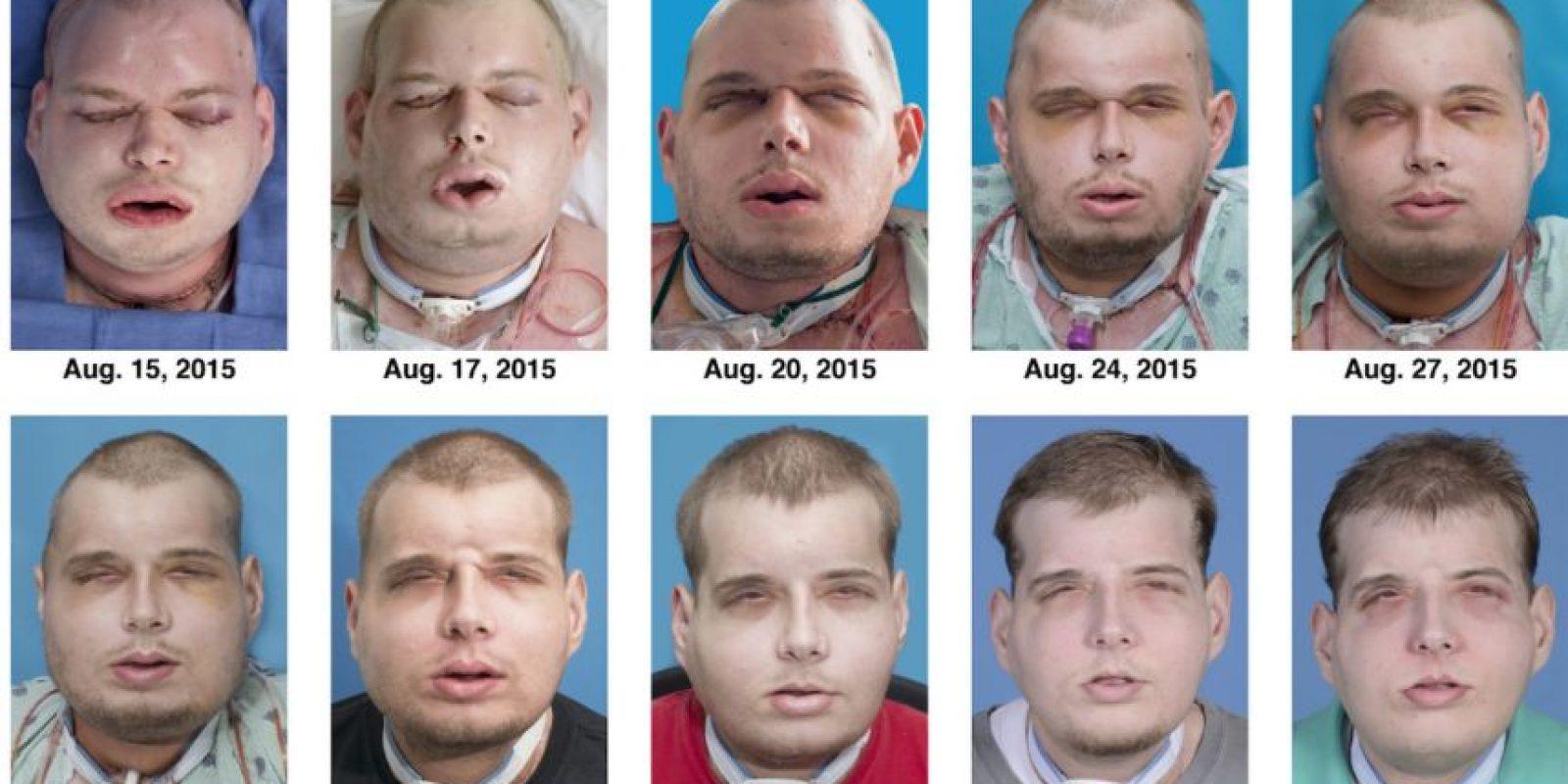 Y fue hasta el pasado agosto que logró conseguir su transplante tras una cirugía de 26 horas. Foto:vía AP