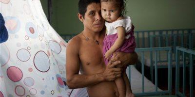 Samuel de Jesús carga a su hija Narcisa de dos años, quien se recupera de malnutrición en una clínica de San Juan Ermita, Guatemala. Foto:AP/ Archivo