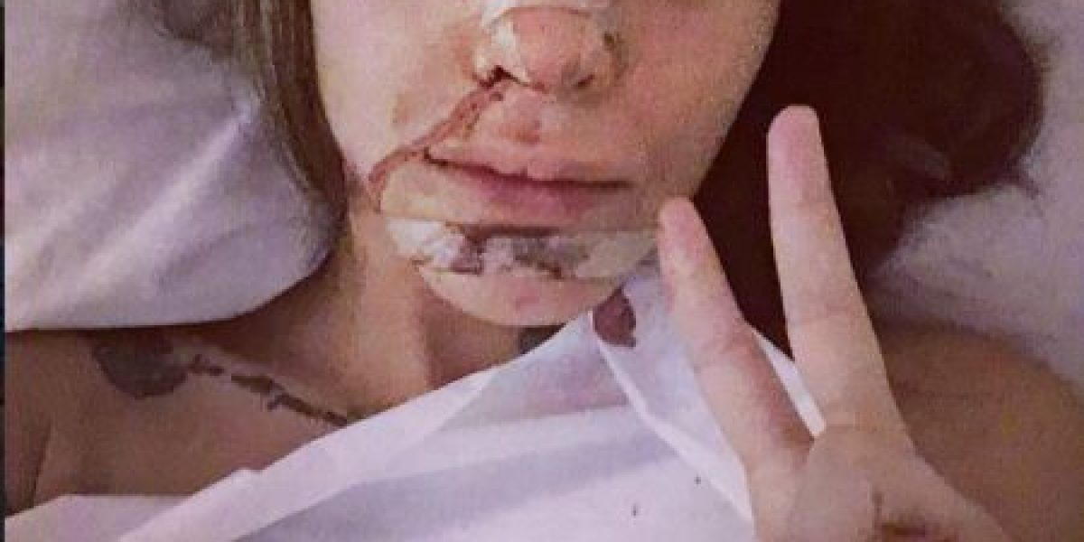 Obsesionada con ser perfecta, ex concursante de Big Brother se operó el rostro