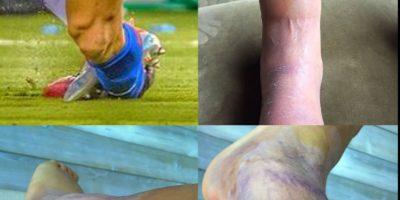 Cuatro días después del encuentro, este jueves, Alexis Sánchez subió una nueva instantánea con la evolución de su lesión. Foto:Getty Images