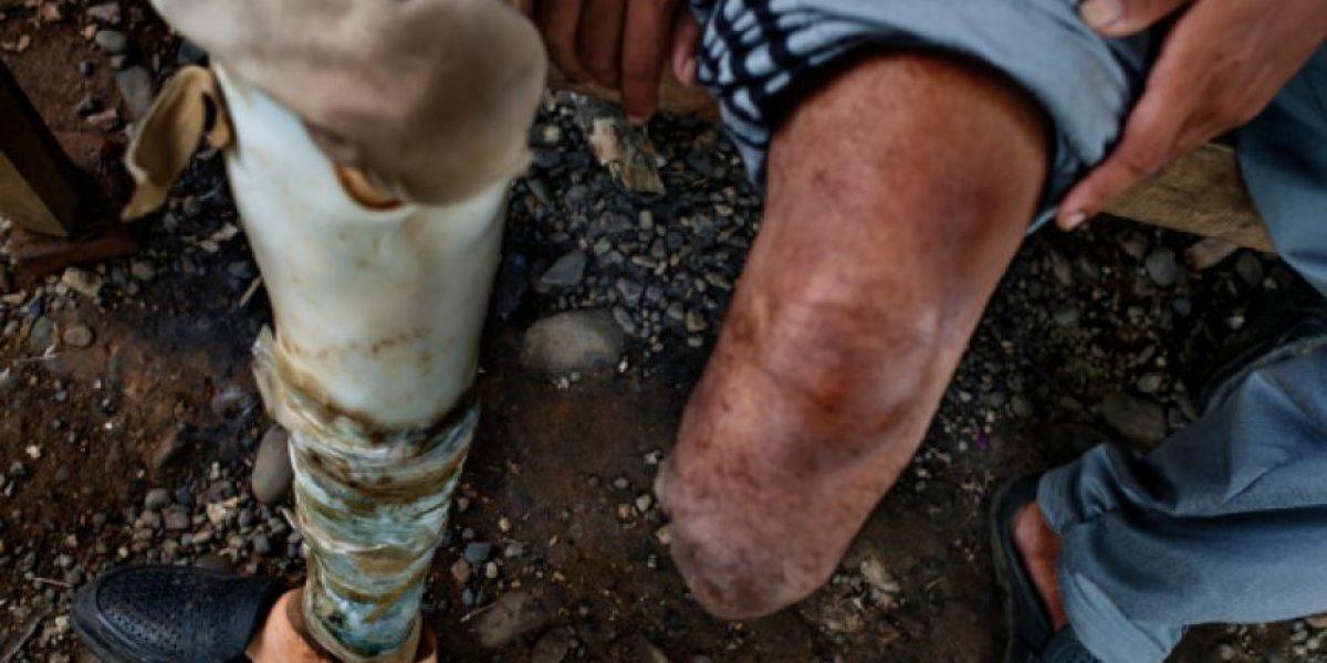 Mexicano demanda a hospitales de NY tras amputación de pierna