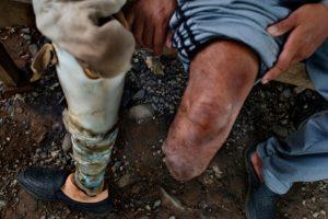 Imagen de Archivo, no tiene relación con el caso de Cuautle, quien tiene 46 años y no lleva en la actualidad una prótesis y no puede trabajar. Foto:Getty Images/ Archivo