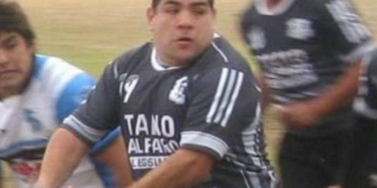 FOTO: ¡A la Tyson! Jugador de rugby muerde a rival y pierde el dedo