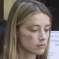 Estas son algunas imágenes que compartió Amber Heard tras ser golpeada por Depp Foto:Grosby Group