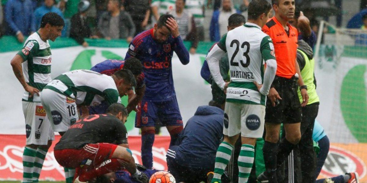 VIDEO: Futbolista argentino sufre escalofriante fractura en la pierna
