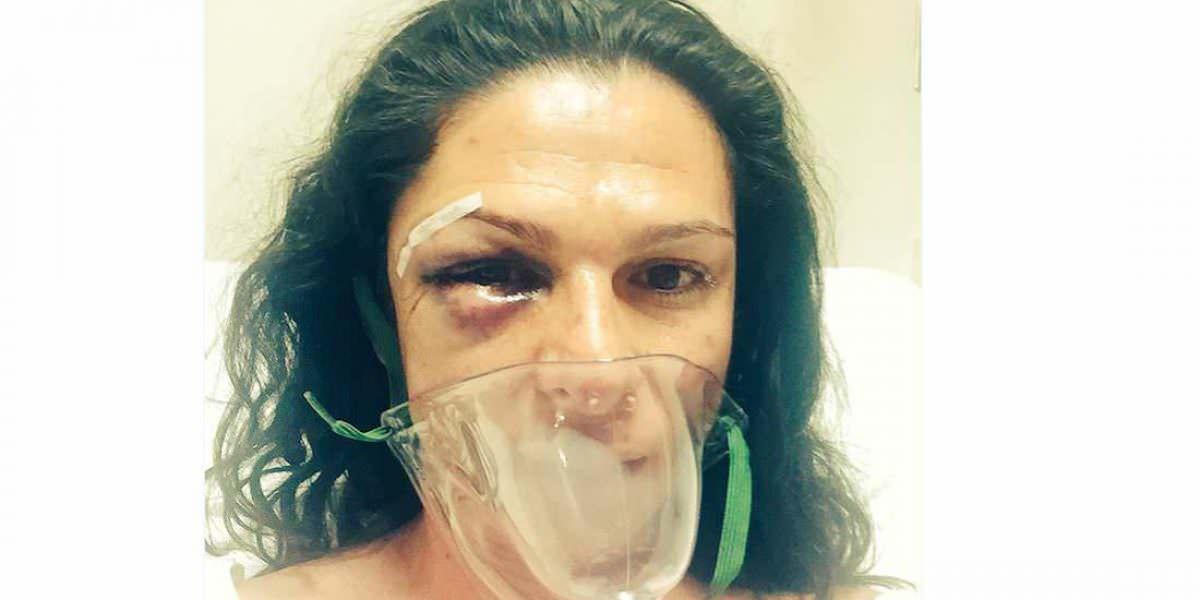 VIDEO: Captan momento de la agresión sobre Ana Guevara y Karina Rincón