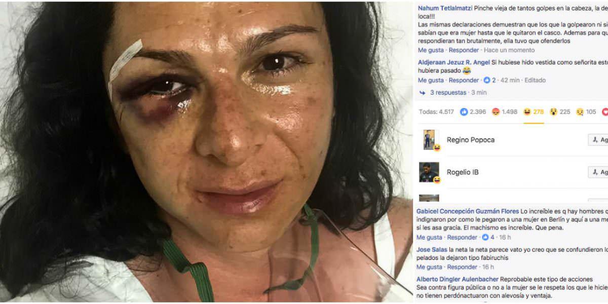 """""""Le pegaron porque parece hombre"""", usuarios se mofan de golpiza a Guevara"""
