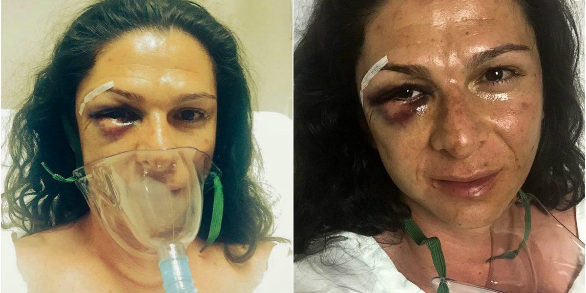 PGR pide buscar y entregar videos de ataque contra Ana Gabriela Guevara