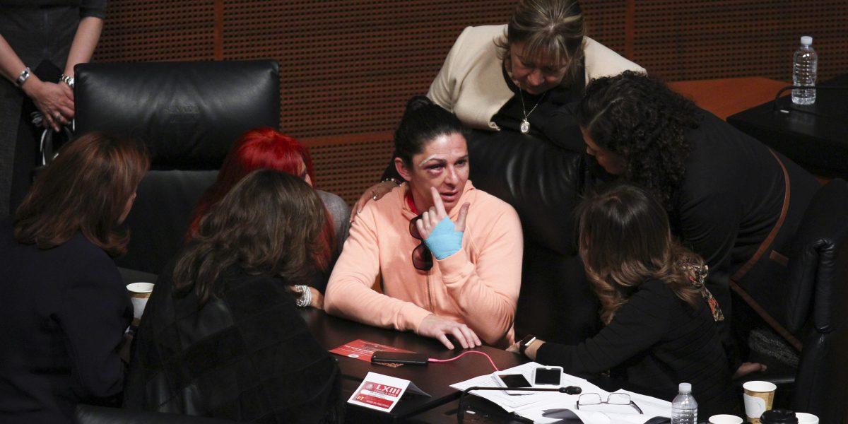 Agresor de Ana Guevara podría ser policía