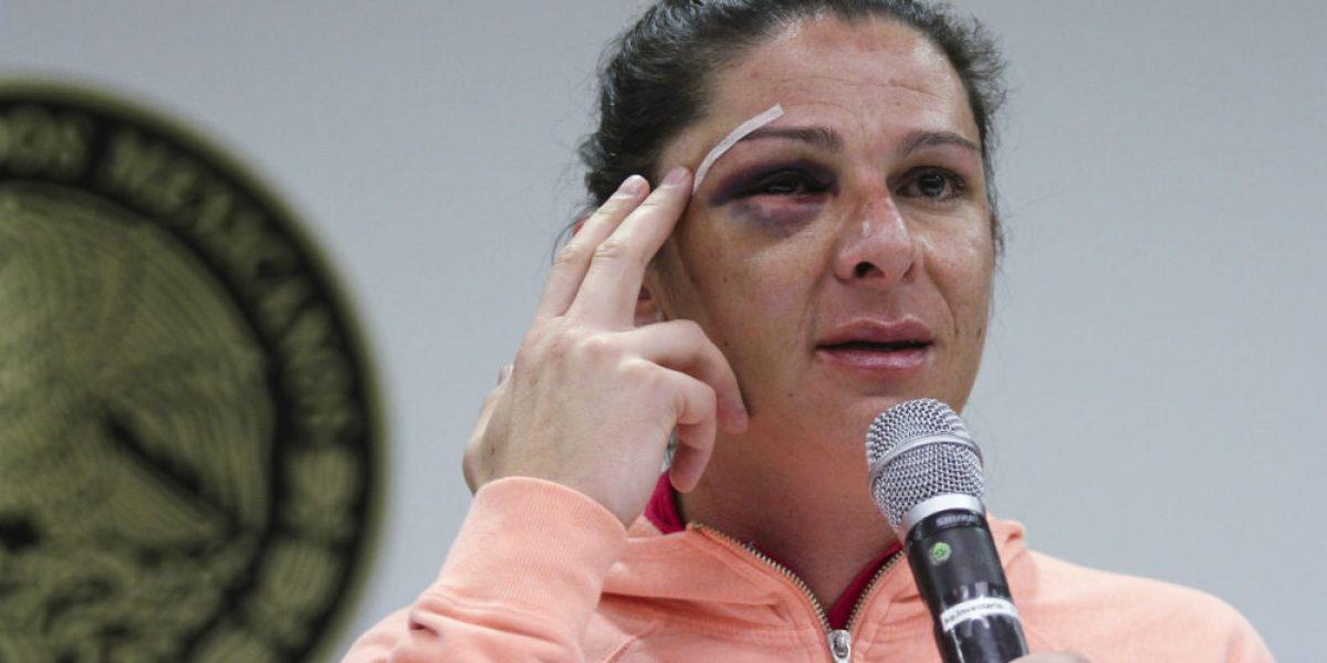 Presunto agresor de Ana Gabriela Guevara era policía del Edomex