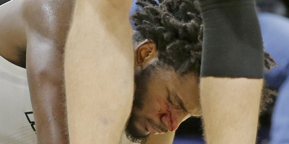 VIDEO: ¿Intencional? Jugador de Celtics propina tremendo codazo a rival