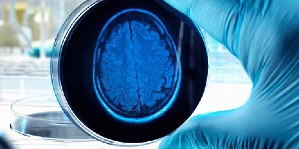 Descubren vínculo del óxido nítrico en el cerebro con el Alzheimer