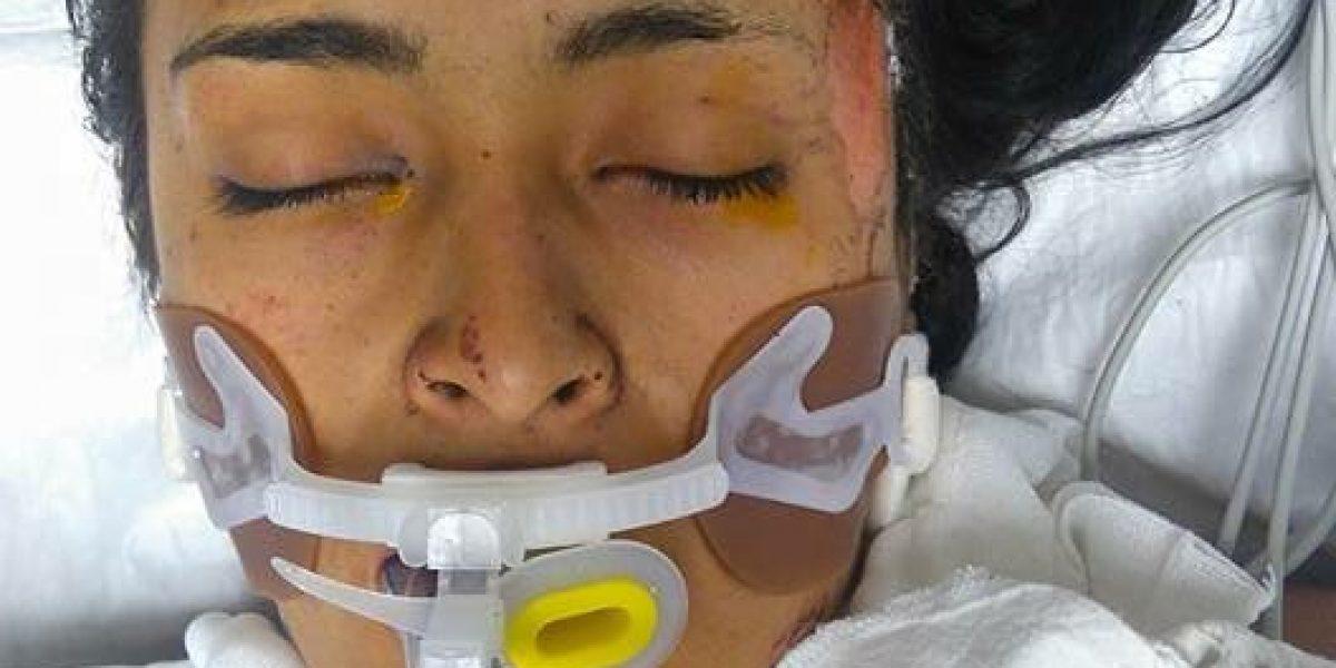 Tultepec: localizan a familia de Daniela Montero, también hospitalizados