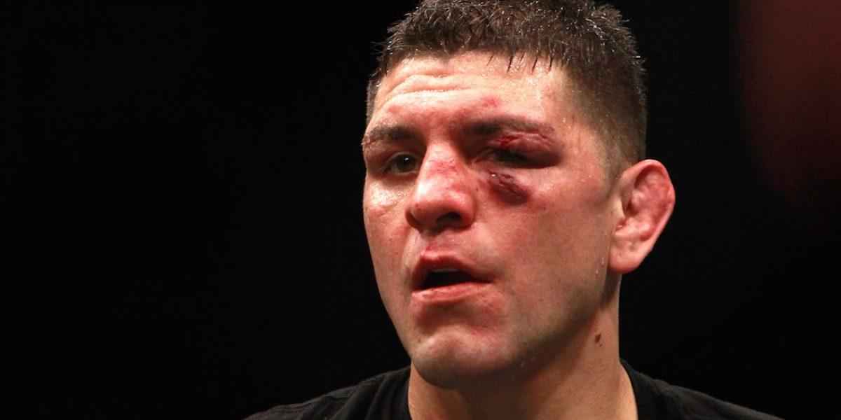 VIDEO: Peleador de UFC presume artículos para consumir marihuana