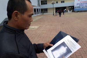 HOMBRE DESCUBRE QUE TENÍA UNAS TIJERAS QUIRÚRGICAS ROTAS EN EL ABDOMEN DESDE HACÍA 18 AÑOS. Imagen Por: Ma Van Nhat, de 54 años, muestra una radiografía de su abdomen en la que aparecen unas tijeras de 15 centímetros rotas en la provincia de Thai Nguyen (Vietnam). Un equipo de cirujanos extrajeron el objeto el pasado 31 de diciembre en una operación que duró tres horas, según informaron varios medios. Parece que las tijeras se quedaron olvidadas en el cuerpo del paciente hace 18 años cuando se sometió a una operación de emergencia tras un accidente de tráfico, apuntan los medios.   Foto: EFE